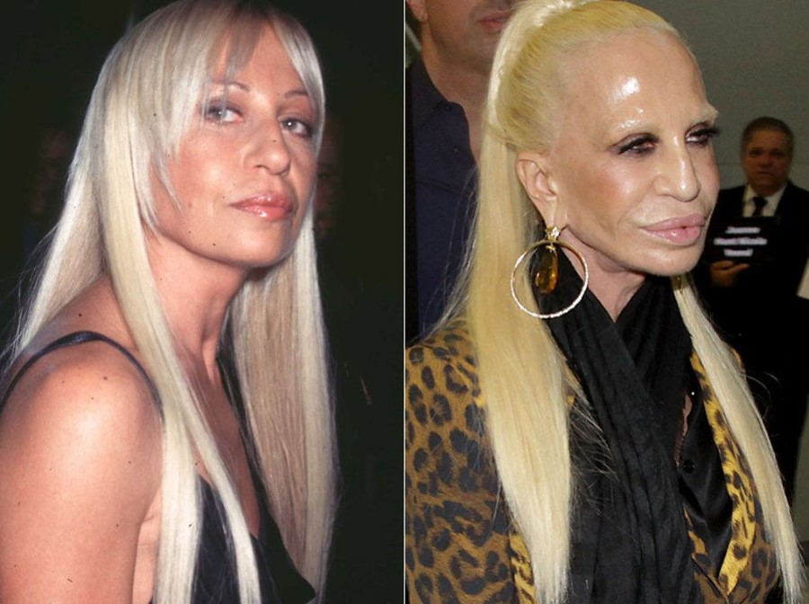 Top 20 Celebrity Plastic Surgery Gone Wrong Photos (Before & After)
