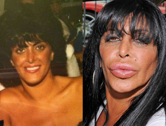 top 20 celebrity plastic surgery gone wrong photos before